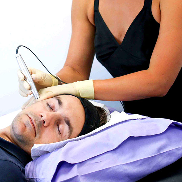 Dermastamp microneedling at Coco Skin Laser Health